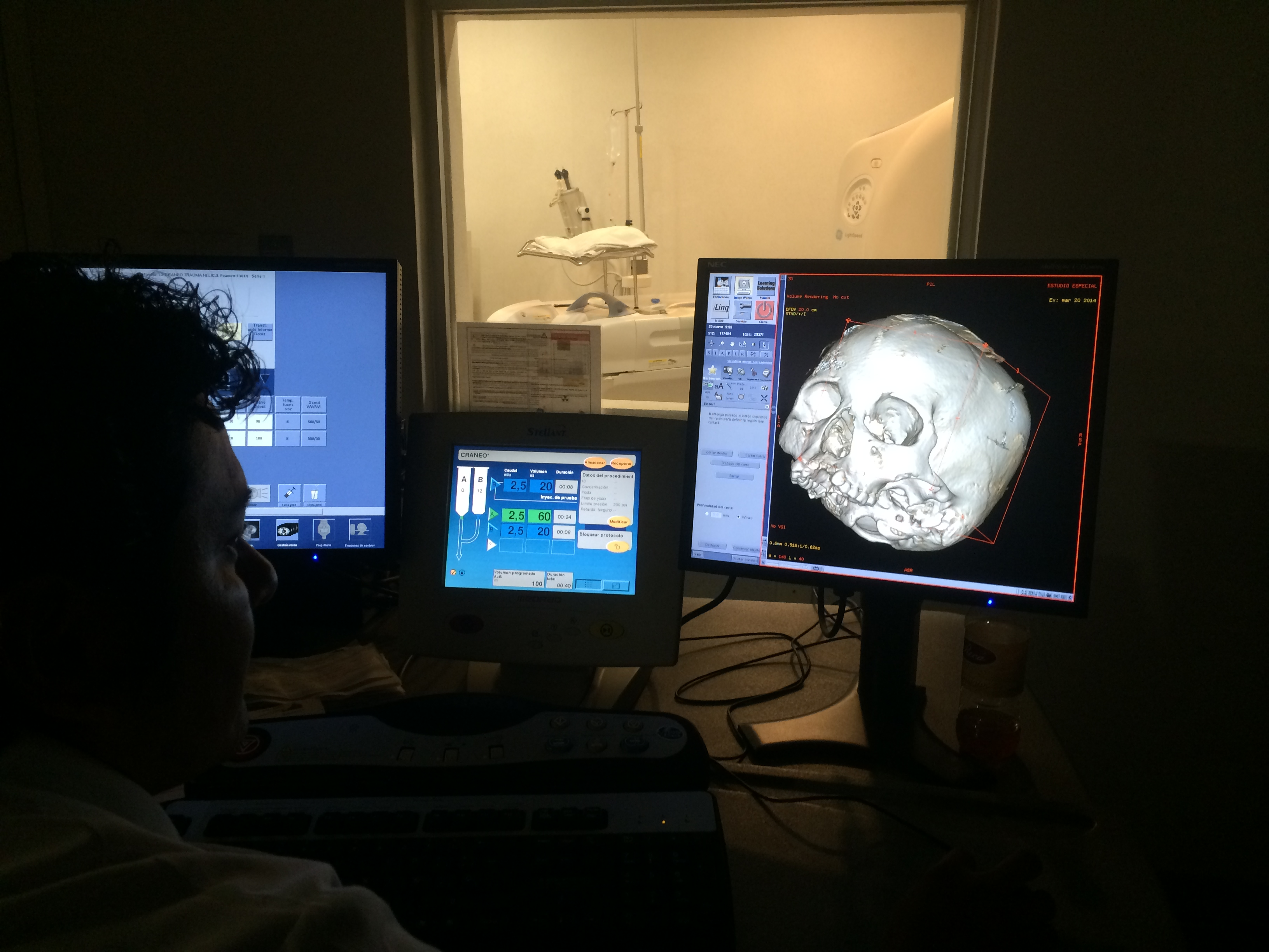 Specialists in Campeche perform a CT scan of Naia's cranium. Photo by James C. Chatters.